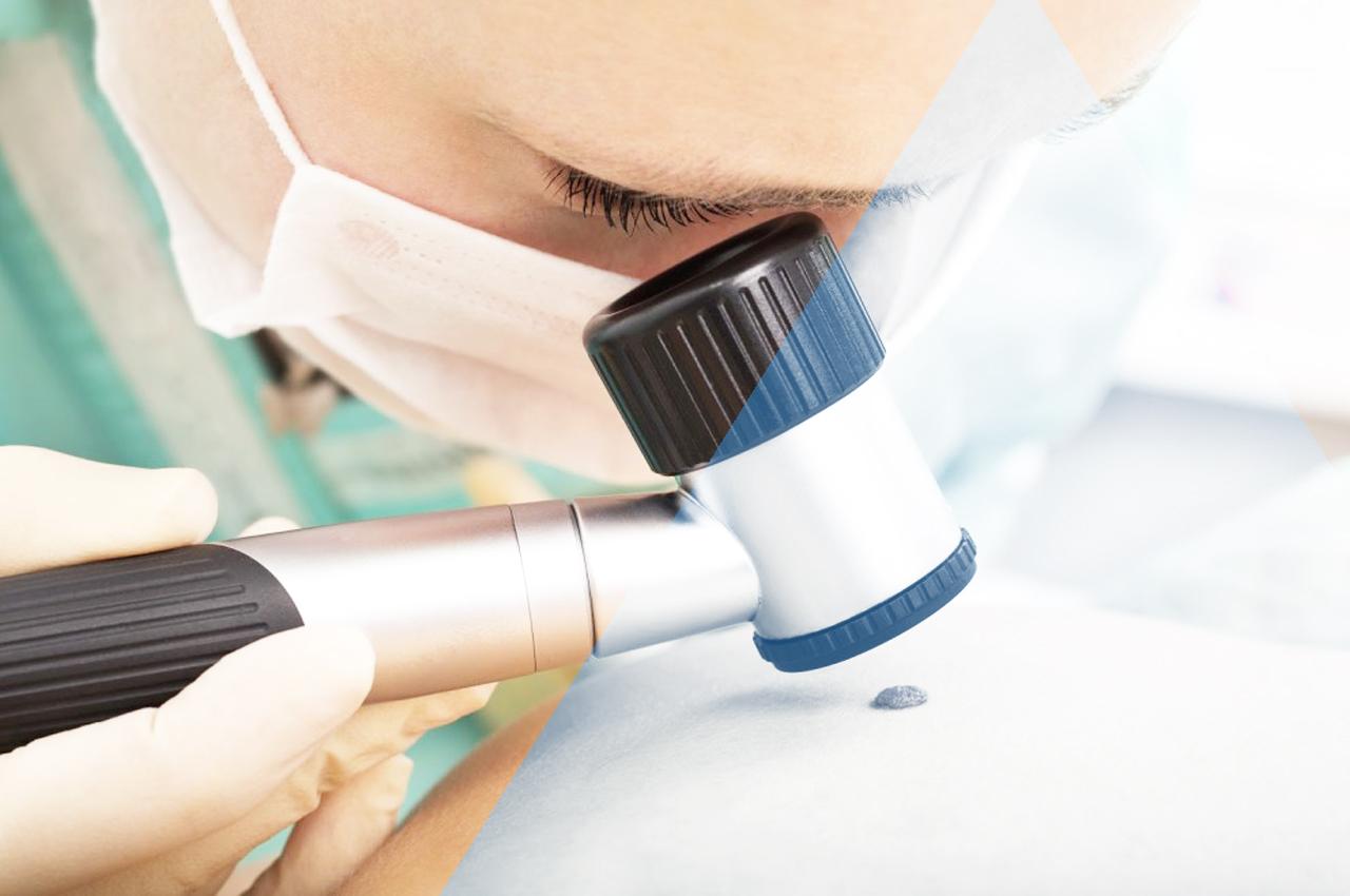 melanomi basaliomi e carcinomi