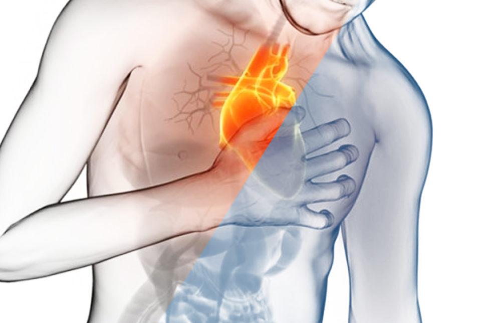 aritmie cardiache HTC Centro Medico Stradella PV