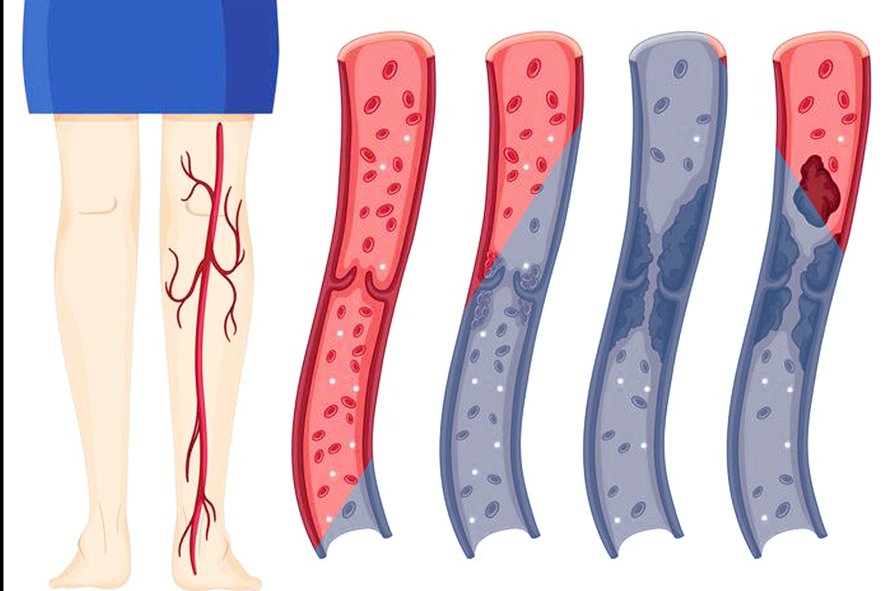Trombosi venosa negli arti inferiori
