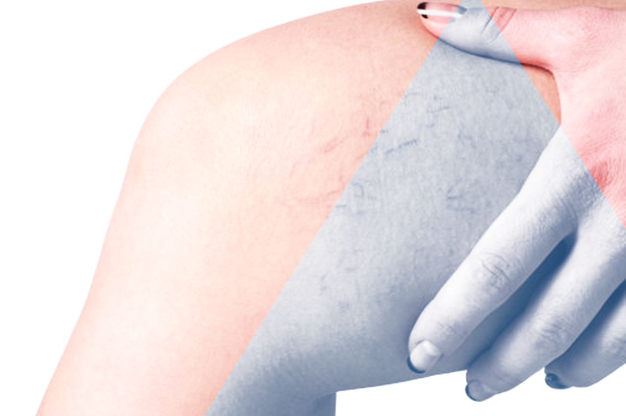 Capillari rotti HTC Centro Medico Stradella PV