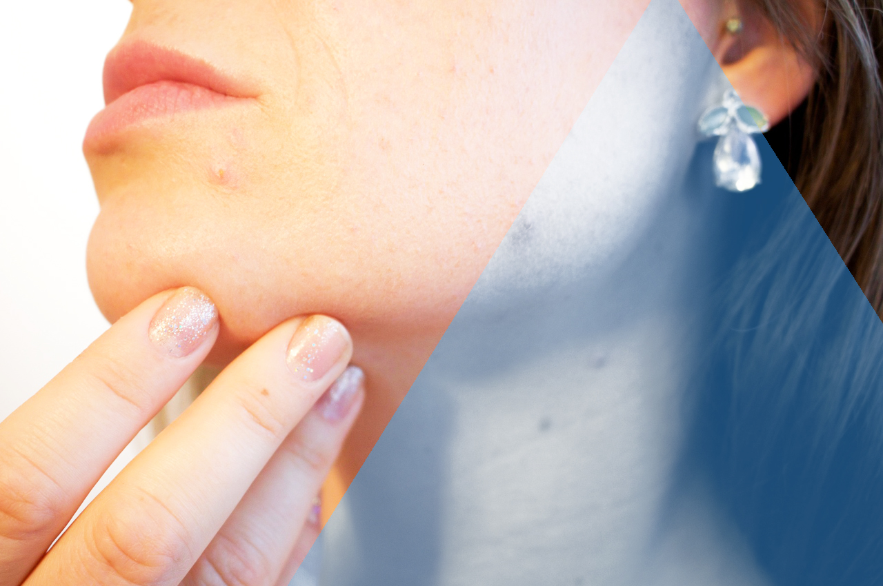 Servizio Dermatologico in HTC