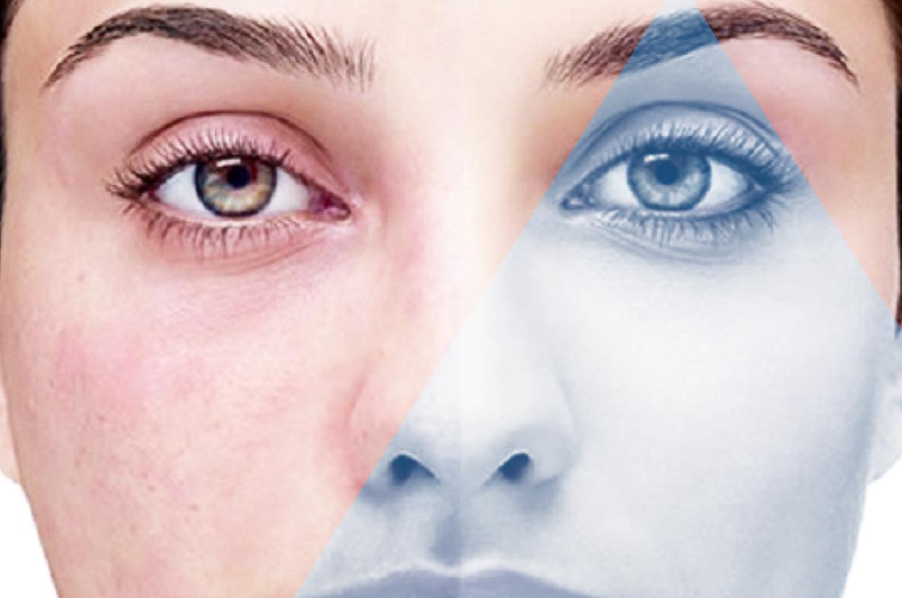 Trattamento laser per couperose e rosacea - HTC Centro Medico Stradella