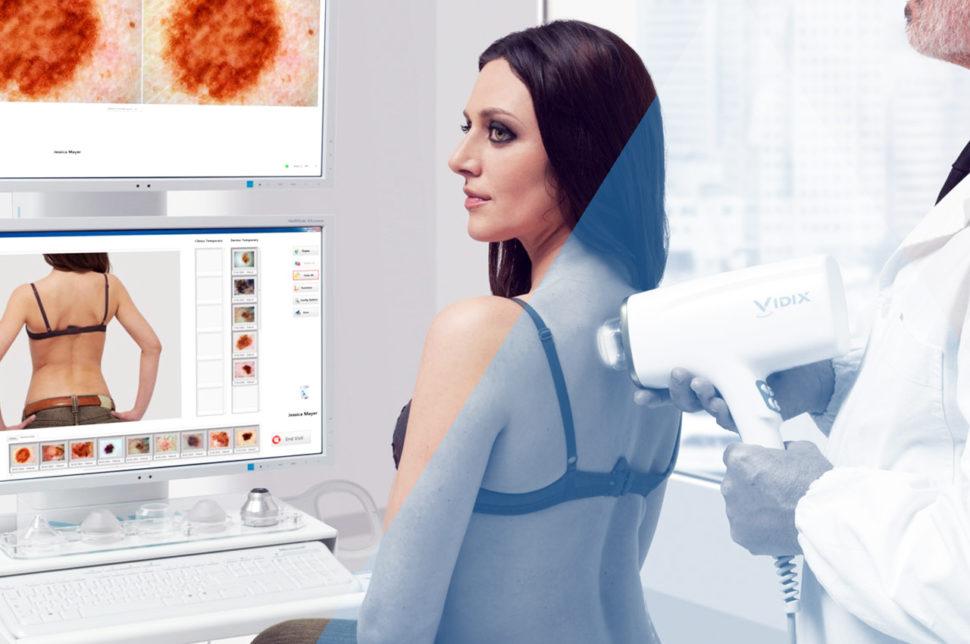 videodermatoscopia