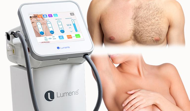 Epilazione con laser medicale