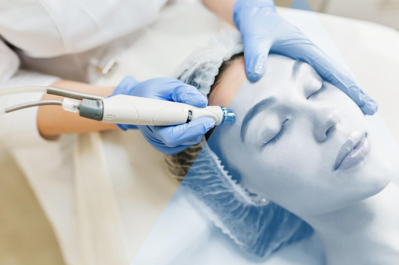 Trattamento capillari - laser estetico - HTC Centro Medico Stradella Pavia